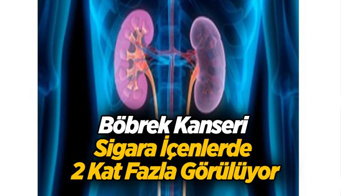 Böbrek Kanseri Sigara İçenlerde 2 Kat Fazla Görülüyor